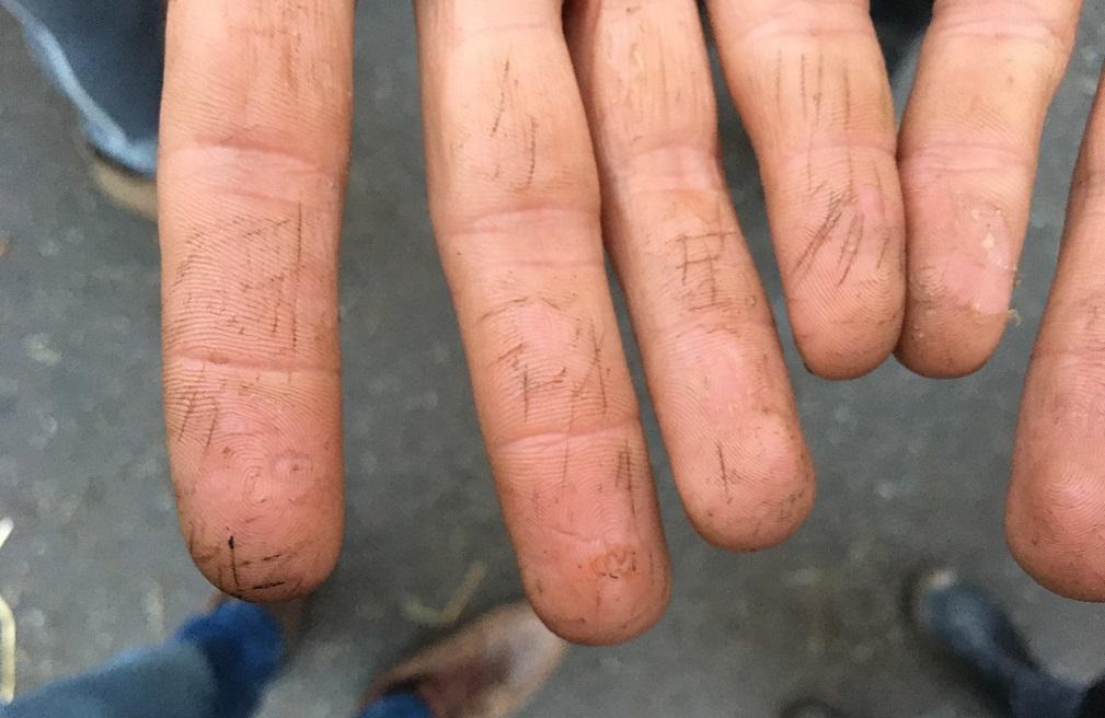 レモンさんの指。本人確認を避けるために、刃物で指紋を判別不能にしてある。筆者が撮影。